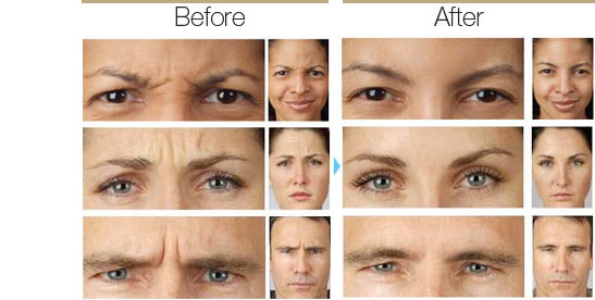 Botox after and before images