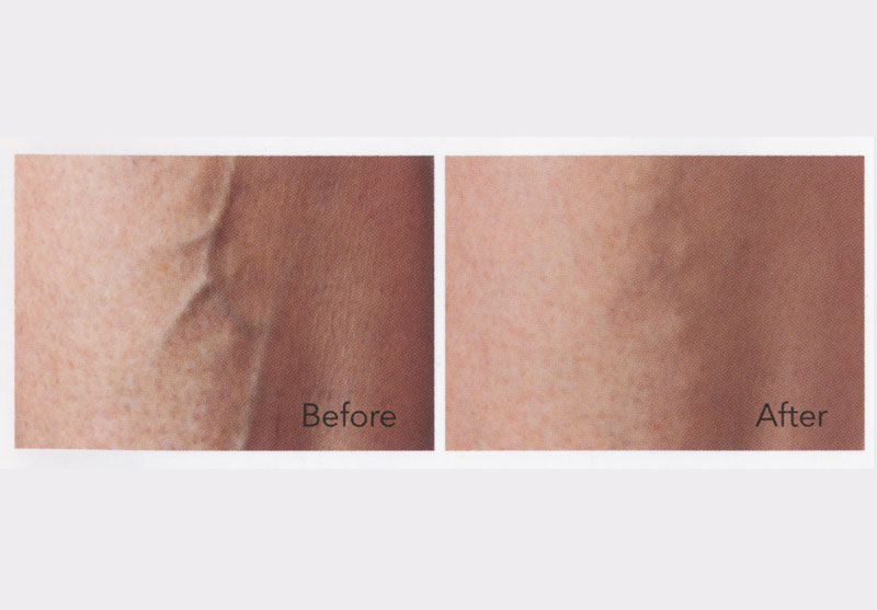 Spider Vein Theraphy Sclerotherapy